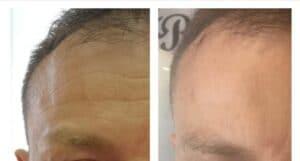 Botox homlok